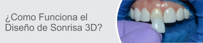 DISEÑO DE SONRISA 3D - COMO FUNCIONA