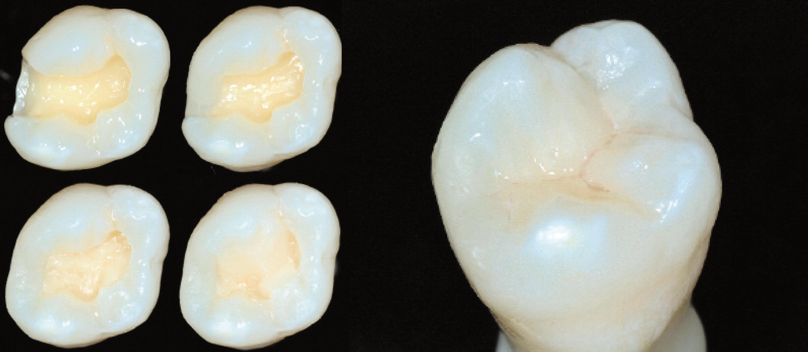 Obturaciones con resina dise o de sonrisa en barranquilla for Arcones de resina para exterior