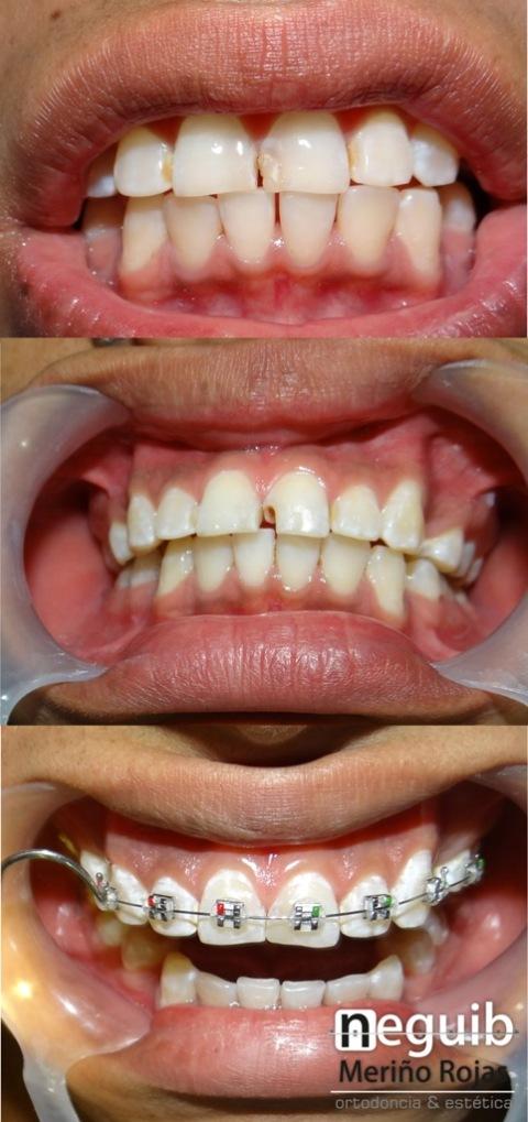Reconstrucion en resina de un diente y brackets mini roth for W de porter ortodoncia