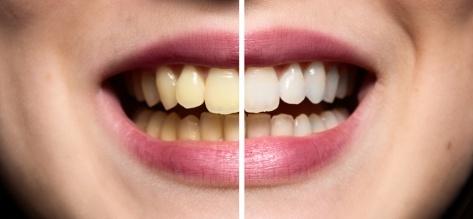 Blanqueamiento Dental Barranquilla