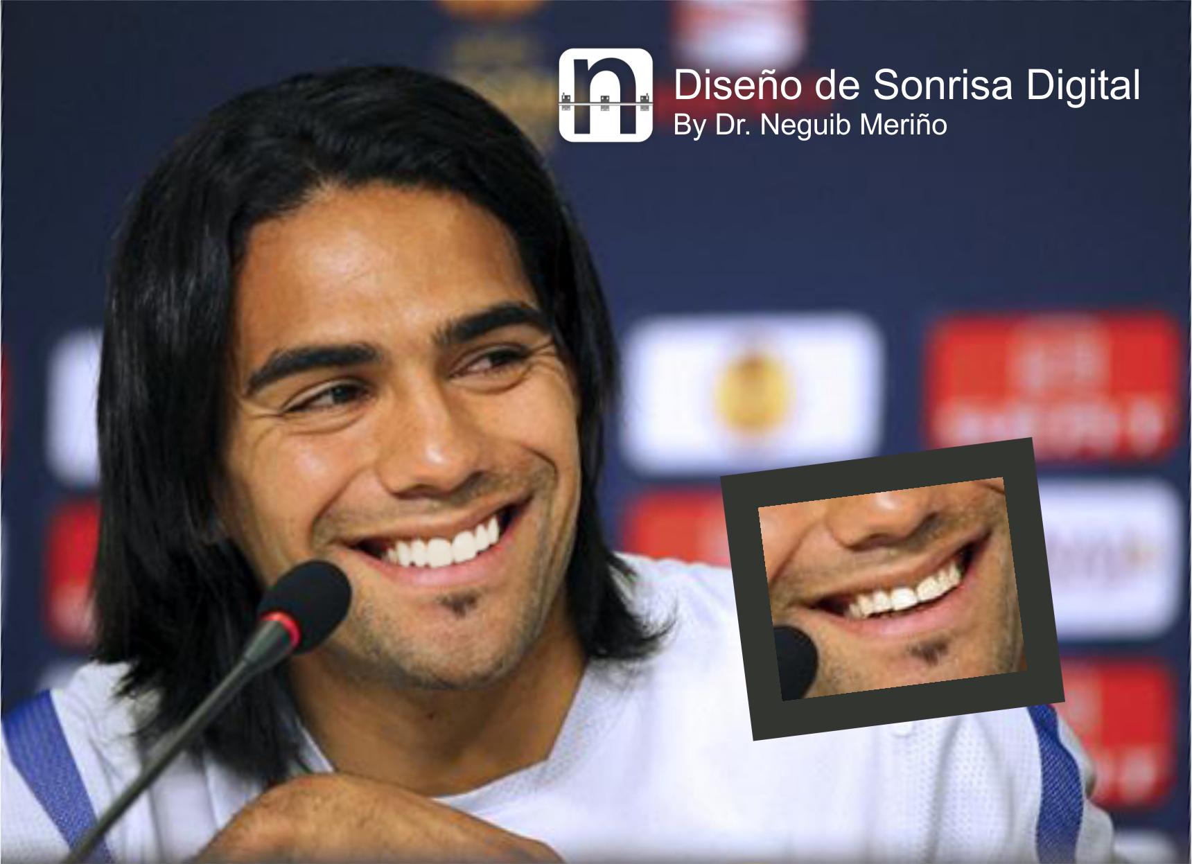 Radamel Radamel Falcao Garcia Disecbo De Sonrisa Digital By