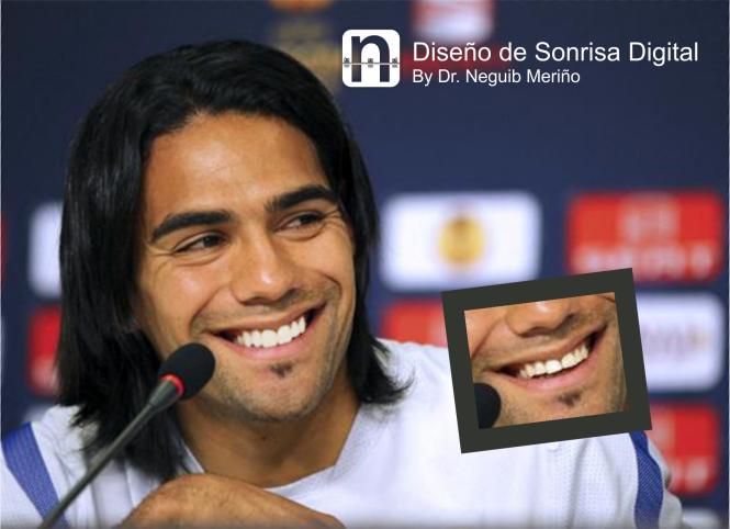 Radamel Falcao Garcia - Diseño de Sonrisa Digital by @DrNeguib