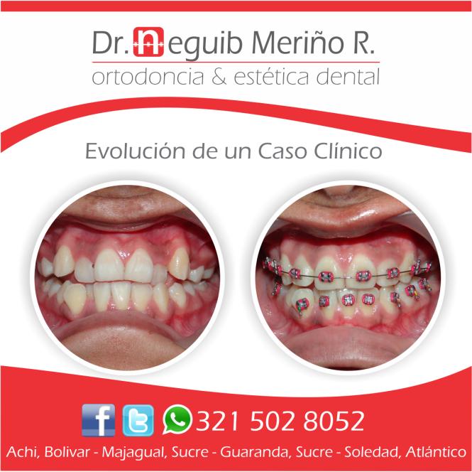 Evolución de Caso Clínico de Ortodoncia