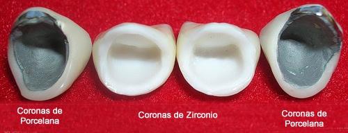 Resultado de imagen de coronas dentales zirconio