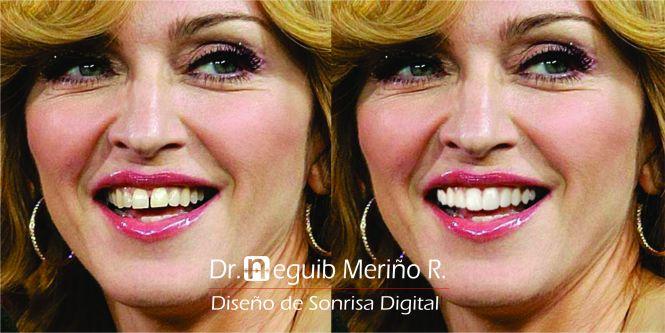 Madonna Diseño de Sonrisa Digital by Dr Neguib Meriño Ortodoncia & Estetica