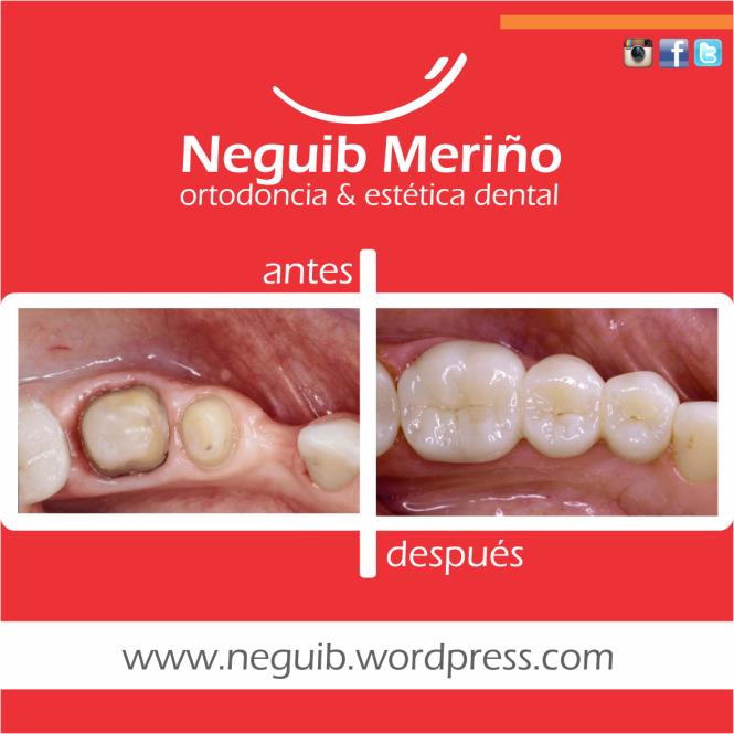 Puente en Porcelana - Neguib Meriño - Ortodoncia y Estetica Dental