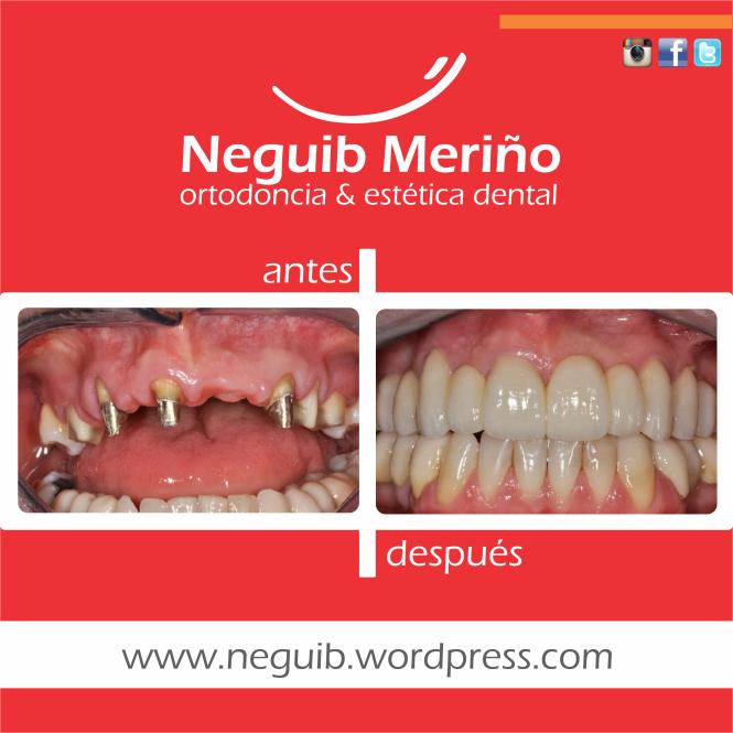 Puente Fijo en Zirconio - Neguib Meriño - Ortodoncia y Estetica Dental