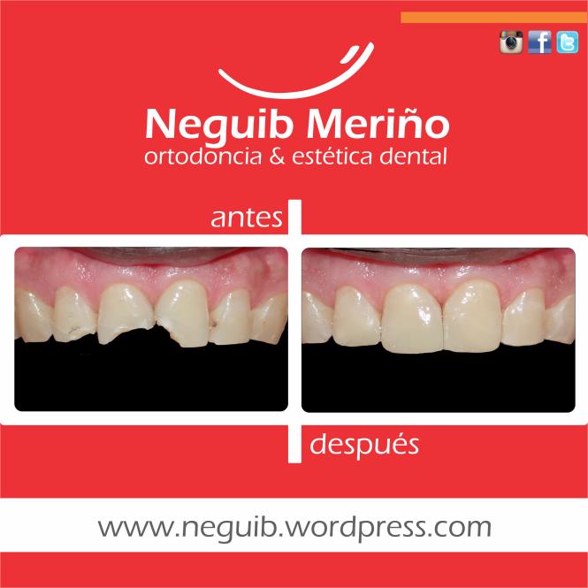 Resinas Esteticas - Neguib Meriño - Ortodoncia y Estetica Dental