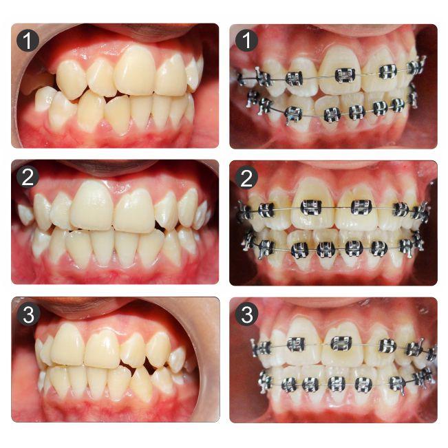 Evoluci n 4 meses de tratamiento de ortodoncia dise o for W de porter ortodoncia