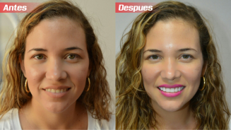 DISEÑO DE SONRISA 3D ANTES Y DESPUES
