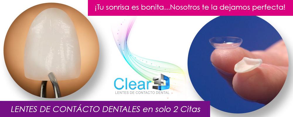 BANNER LENTES DE CONTACTO DENTAL CLEAR3D.