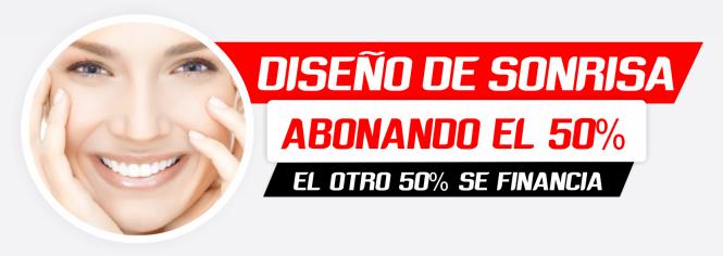 DISEÑO DE SONRISA PRECIO